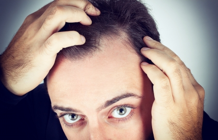 scalp: Caucasian young man controls hair loss Stock Photo
