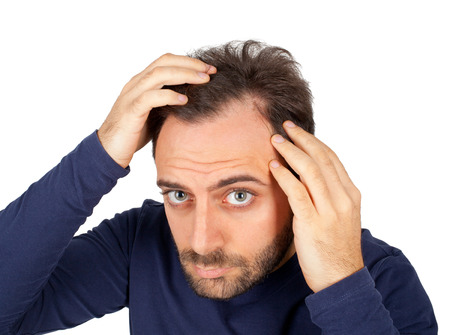 young man short hair: Caucasian young man controls hair loss Stock Photo
