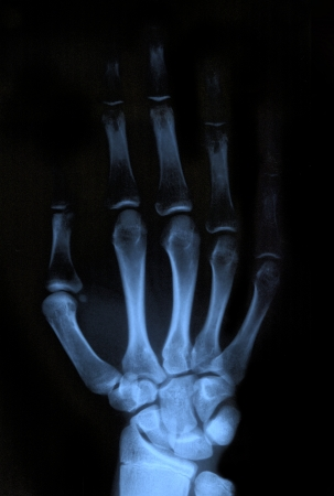 Scan of human hand xray image medical background photo