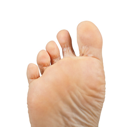 psoriasis: One foot on a white background, Athlete Stock Photo