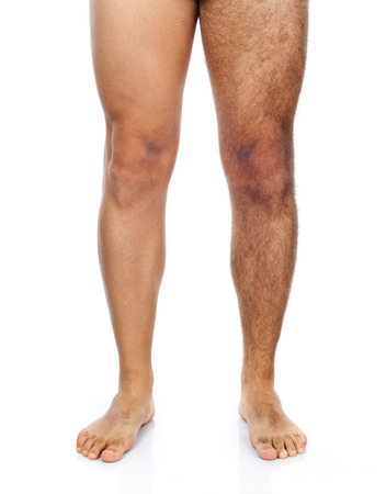 Lábát egy férfi, a jobb lába van borotválva míg a bal oldali nagyon szőrös. Stock fotó