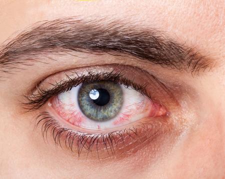Close-up van geïrriteerde rode bloed oog. Stockfoto