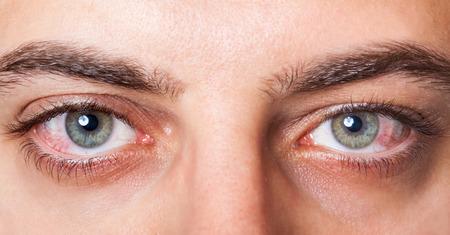 vasos sanguineos: Hasta cerca de dos irritados ojos rojos sanguíneos.