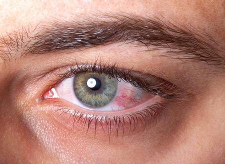 Close Up de irritación de ojos rojo sangre.