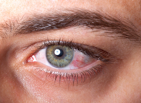 eye ball: Close Up of irritated red blood eye.