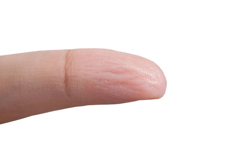 impregnated: Wrinkled skin of finger because of long time in water. Stock Photo
