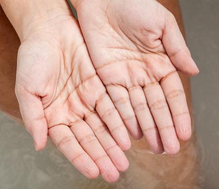 impregnated: Pelle rugosa delle mani a causa del lungo tempo in acqua.