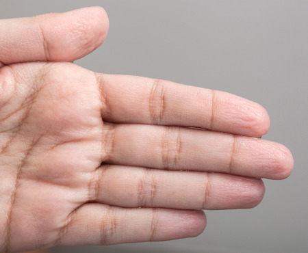 impregnated: Wrinkled skin of the hands because of long time in water.