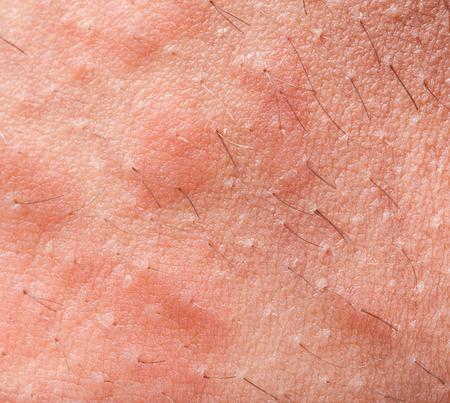 Eczema dermatite atopica struttura della pelle sintomo Archivio Fotografico - 37568010