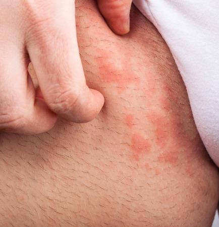pokrzywka: Wyprysku atopowego zapalenia skóry pachwiny tekstury skóry objaw