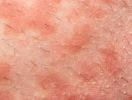 sarpullido: Atópico Eczema Dermatitis textura de la piel de los síntomas