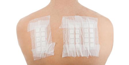 白い背景の上の男性患者の裏に皮膚アレルギー パッチ テスト