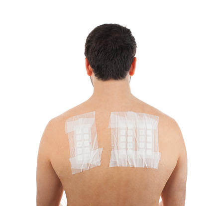 Skin Allergy Patch Test on Back of Male Patient On White Background Фото со стока