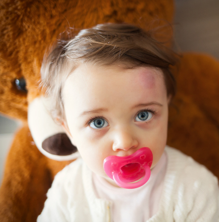 Toddler with big bruise on his forehead after bumping. Children often accidentally bump their heads.