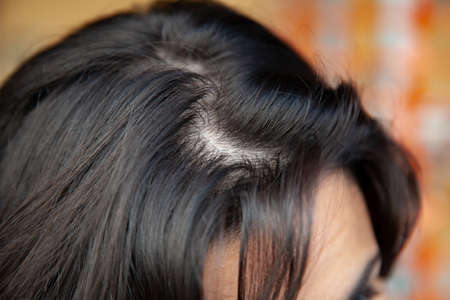 Woman shows thinning hair near the root with oily hair problems. Hair loss can have several factors, including genetics, pathologies and pregnancy.
