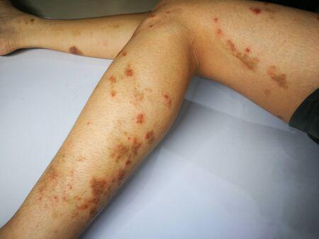Junge hat chronischen Hautausschlag. Grasallergische Hautkrankheit. Atopische Dermatitis. Altersfleckenhaut
