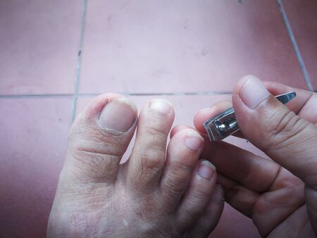 Man Cutting foot fingernails or pedicure dirty foot by Nail clippers