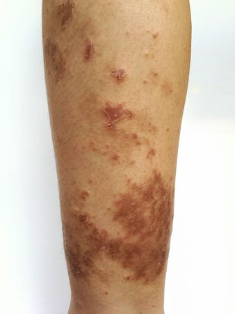 Young boy has Chronic rash on skin. Grass allergic skin disease. Atopic dermatitis. Age spot skin.
