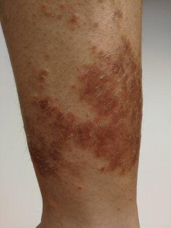 Jonge jongen heeft chronische uitslag op de huid. Gras allergische huidziekte. Atopische dermatitis. Huid met ouderdomsvlekken.