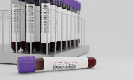 Test tubes with blood and coronavirus test label  isolated on white background. Concept for testing corona virus. 3D Rendering. Banque d'images