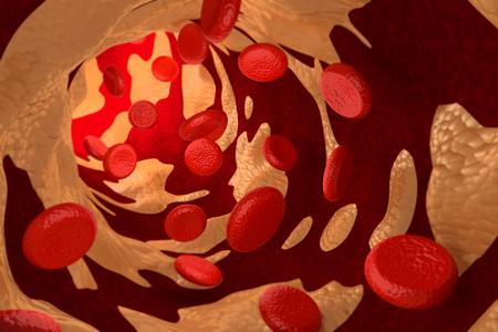 placa bacteriana: Artesclerosis por la placa de colesterol, 3D