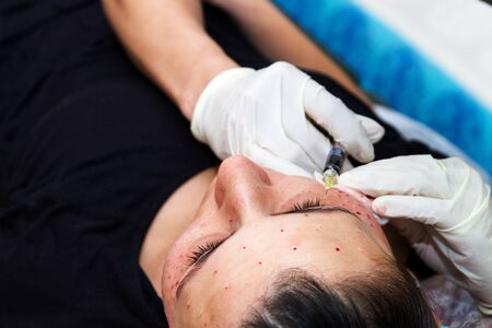 Injections on the face with cosmetic procedures , woman having beauty treatment . photo