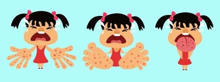 HFMD-Kinder infiziert. Hand Maul- und Klauenseuche. Mädchen infiziert Enterovirus. Karikaturvektorillustration