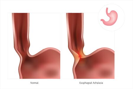 The stomach or oesophagus is often referred to as simple Achalasia. The lower oesophageal sphincter does not relax, causing inflammation.