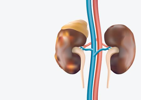 Human Kidney presents a medical concept as a organ that has the formation of painful minerals as a medical symbol with visual elements. Stock Photo
