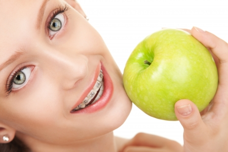 cute braces: Cute girl in braces with green apple on white background