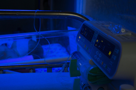 Newborn baby under blue UV light for phototheraphy on infant warmer in neonatal intensive care unit. Child baby having a treatment for jaundice under ultraviolet light in incubator. Device for delivery of a dropper.