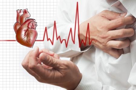 dolor de pecho: Ataque al corazón y el corazón late de fondo cardiograma