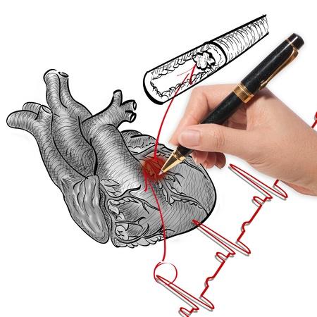 angina: Dibujo Médico ataque al corazón y electrocardiograma corazón late
