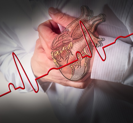 angina: Heart Attack and heart beats cardiogram background