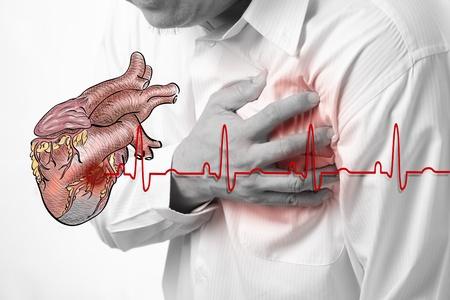 crise cardiaque: Heart Attack et le c?ur bat de fond cardiogramme