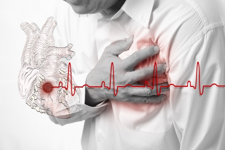 heart attack: Heart Attack and heart beats cardiogram background