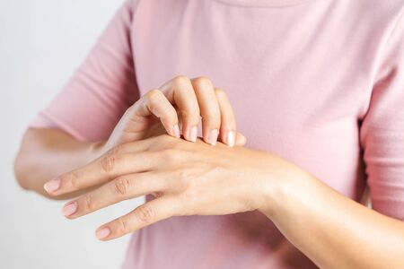 Closeup of young woman scratching the itch on her hands. Health care and medical concept.