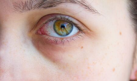close photo. sick green eye with blood vessels, conjunctivitis, inflammation. bags under the eyes Stock Photo
