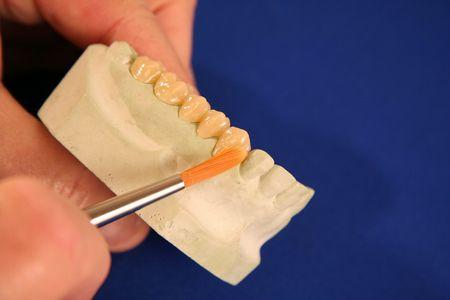 fake smile: Oral Health Teeth Mold Stock Photo