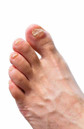 athletes foot with attacked toenails on white background Stock Photo