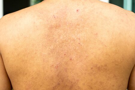 Closeup image of a male body suffering from chronic skin rash. Food allergy rash. Stock Photo