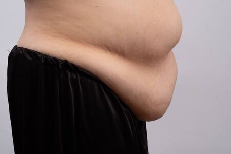 Women body very fat belly. Health care concept.
