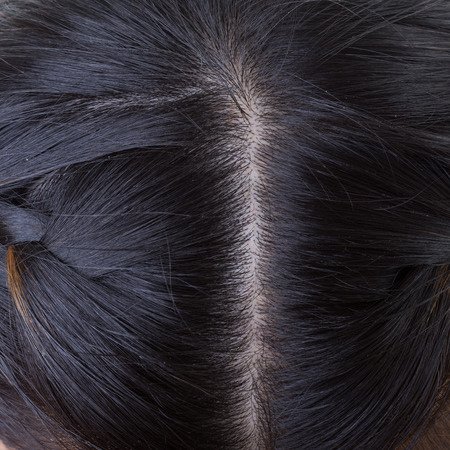 hormonal: black hair with dandruff on head, close-up image