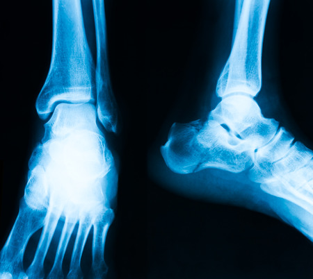 X-ray image of ankle, AP and lateral view photo