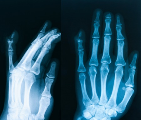 thumb x ray: X-ray image of hand, AP and oblique veiw