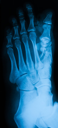 X-ray of foot, oblique view, show fracture of 1th metatarsal bone photo