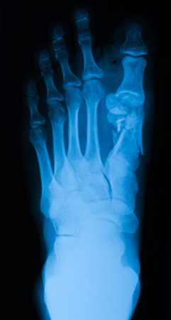 X-ray of foot, AP view, show fracture of 1th metatarsal bone photo