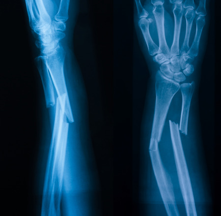 bone fracture: X-ray image of broken forearm, AP and lateral view, show fracture of ulna and radius