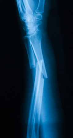radius ulna: X-ray image of broken forearm,  lateral view, show fracture of ulna and radius