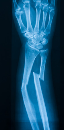 X-ray image of broken forearm, AP view, show fracture of ulna and radius